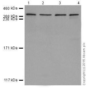 Western blot - Anti-Huntingtin antibody [EPR5526] (ab109115)