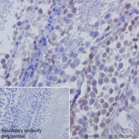 Immunohistochemistry (Formalin/PFA-fixed paraffin-embedded sections) - Anti-Huntingtin antibody [EPR5526] (ab109115)