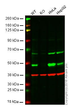 Western blot - Anti-Hsp47 antibody [EPR4217] (ab109117)