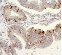 Immunohistochemistry (Formalin/PFA-fixed paraffin-embedded sections) - Anti-SATB1 antibody [EPR3951] (ab109122)