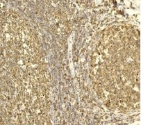 Immunohistochemistry (Formalin/PFA-fixed paraffin-embedded sections) - Anti-Plastin L antibody [EPR4277] (ab109124)