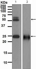 Western blot - Anti-TMPRSS2 antibody [EPR3862] (ab109131)