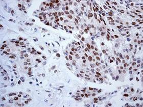 Immunohistochemistry (Formalin/PFA-fixed paraffin-embedded sections) - Anti-FEN1 antibody [EPR4460(2)] (ab109132)