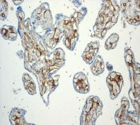 Immunohistochemistry (Formalin/PFA-fixed paraffin-embedded sections) - Anti-Thrombomodulin antibody [EPR4051] (ab109189)
