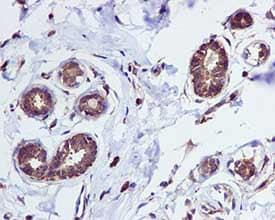 Immunohistochemistry (Formalin/PFA-fixed paraffin-embedded sections) - Anti-Tryptophanyl tRNA synthetase/WRS antibody [EPR3423] (ab109213)