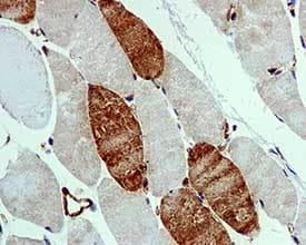 Immunohistochemistry (Formalin/PFA-fixed paraffin-embedded sections) - Anti-UNG antibody [EPR4371] (ab109214)