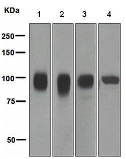 Western blot - Anti-CD166 antibody [EPR2759(2)] (ab109215)