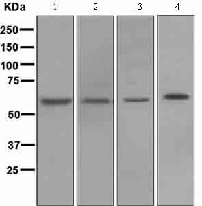 Western blot - Anti-NADPH oxidase 4 antibody [UOTR1B492] (ab109225)