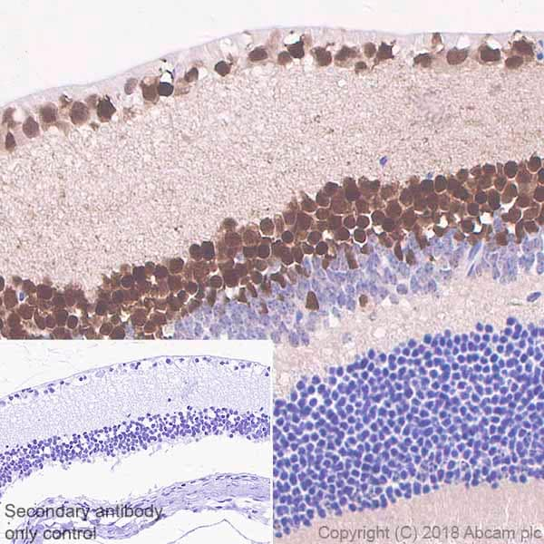 Immunohistochemistry (Formalin/PFA-fixed paraffin-embedded sections) - Anti-PAX6 antibody [EPR3352(2)] (ab109233)