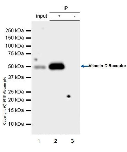 Immunoprecipitation - Anti-Vitamin D Receptor antibody [EPR4552] - ChIP Grade (ab109234)