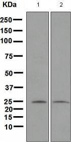 Western blot - Anti-Neurogenin 2/NGN2 antibody [EPR4177] (ab109236)
