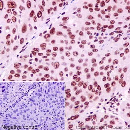 Immunohistochemistry (Formalin/PFA-fixed paraffin-embedded sections) - Anti-YY1 antibody [EPR4652] - Nuclear Loading Control (ab109237)