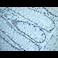 Immunohistochemistry (Formalin/PFA-fixed paraffin-embedded sections) - Anti-Nanog antibody [EPR2027(2)] (ab109250)