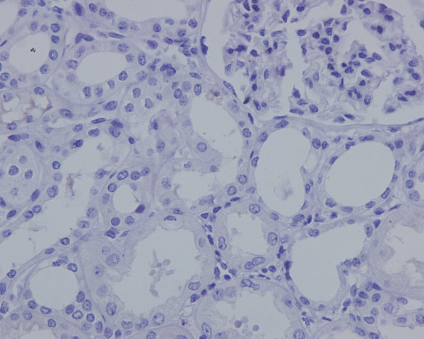 Immunohistochemistry (Formalin/PFA-fixed paraffin-embedded sections) - Anti-Nanog antibody [EPR2027(2)] (ab109250)