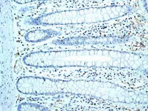 Immunohistochemistry (Formalin/PFA-fixed paraffin-embedded sections) - Anti-SLP76 antibody [EPR2549(2)] (ab109254)