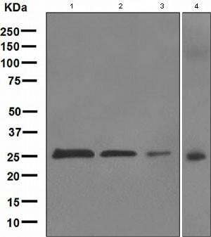Western blot - Anti-PGP9.5 antibody [EPR4117] (ab109261)