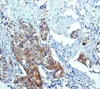 Immunohistochemistry (Formalin/PFA-fixed paraffin-embedded sections) - Anti-mTOR (phospho S2448) antibody [EPR426(2)] (ab109268)