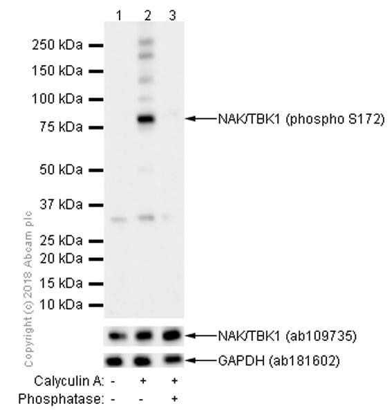 Western blot - Anti-NAK/TBK1 (phospho S172) antibody [EPR2867(2)] (ab109272)