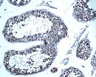 Immunohistochemistry (Formalin/PFA-fixed paraffin-embedded sections) - Anti-Ube2N / Ubc13 antibody [EPR5162] (ab109286)