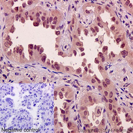 Immunohistochemistry (Formalin/PFA-fixed paraffin-embedded sections) - Anti-Axin 2 antibody [EPR2005(2)] (ab109307)