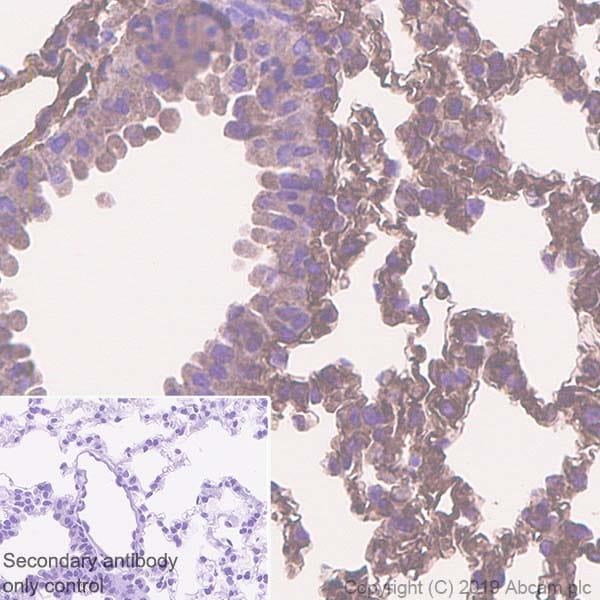 Immunohistochemistry (Formalin/PFA-fixed paraffin-embedded sections) - Anti-EHD1 antibody [EPR4954] (ab109311)