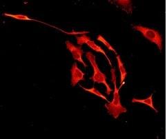 Immunocytochemistry/ Immunofluorescence - Anti-Zyxin antibody [EPR4302] (ab109316)