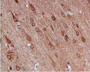 Immunohistochemistry (Formalin/PFA-fixed paraffin-embedded sections) - Anti-NUDC antibody [EPR5073] (ab109318)