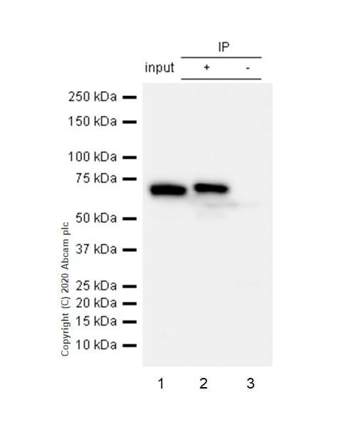 Immunoprecipitation - Anti-TNF Receptor II antibody [EPR1653] (ab109322)