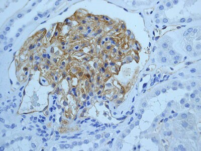 Immunohistochemistry (Formalin/PFA-fixed paraffin-embedded sections) - Anti-ICAM1 antibody [EPR4776] (ab109361)