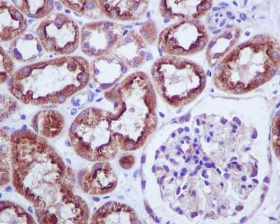 Immunohistochemistry (Formalin/PFA-fixed paraffin-embedded sections) - Anti-BNIP3 antibody [EPR4034] (ab109362)