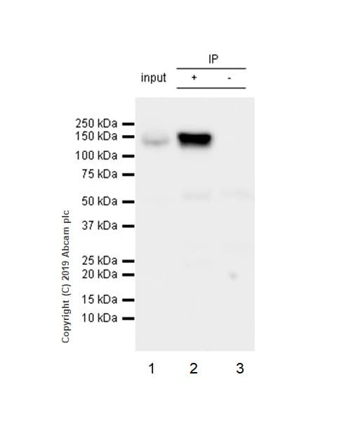 Immunoprecipitation - Anti-RENT1/hUPF1 antibody [EPR4681] (ab109363)