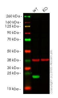 Western blot - Anti-Peroxiredoxin 2/PRP antibody [EPR5154] (ab109367)