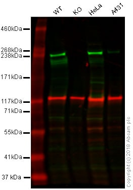 Western blot - Anti-Acetyl Coenzyme A Carboxylase antibody [EPR4971] (ab109368)