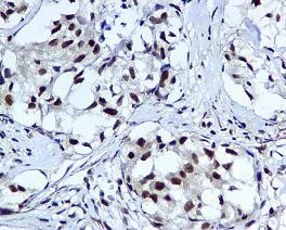 Immunohistochemistry (Formalin/PFA-fixed paraffin-embedded sections) - Anti-HUS1 antibody [EPR5132] (ab109371)