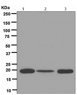 Western blot - Anti-Ferritin Light Chain antibody [EPR5260] (ab109373)