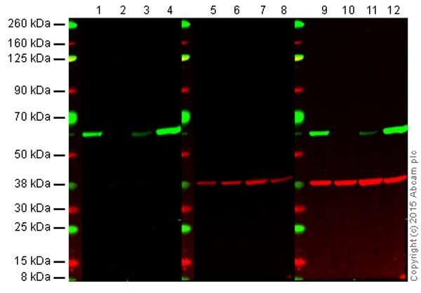 Western blot - Anti-Src antibody [EPR5496] (ab109381)