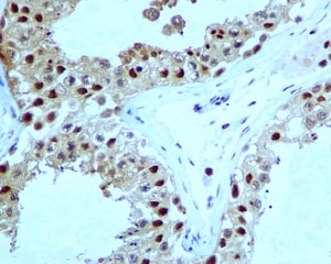 Immunohistochemistry (Formalin/PFA-fixed paraffin-embedded sections) - Anti-Proteasome 20S alpha 5/PSMA5 antibody [EPR5832] (ab109387)
