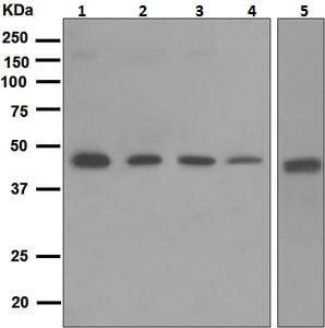 Western blot - Anti-PRKX antibody [EPR4840] (ab109389)