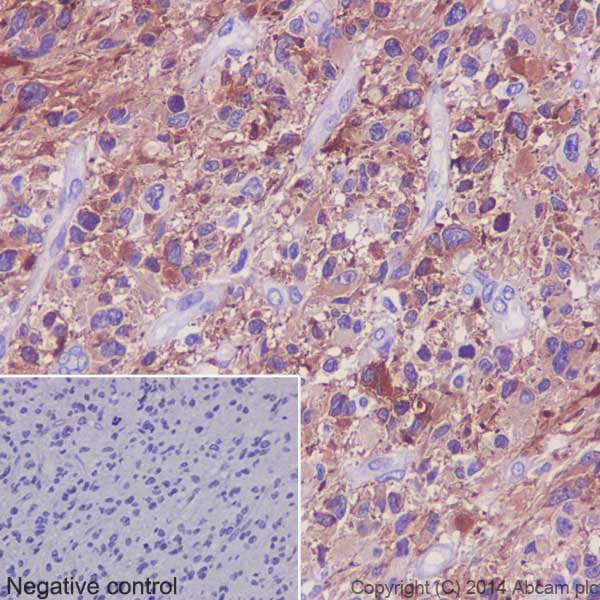 Immunohistochemistry (Formalin/PFA-fixed paraffin-embedded sections) - Anti-Tau (phospho S396) antibody [EPR2731] (ab109390)