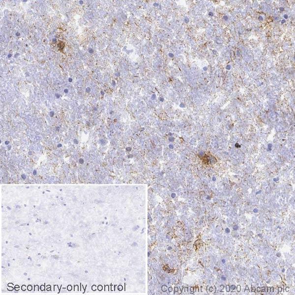 Immunohistochemistry (Frozen sections) - Anti-Tau (phospho S396) antibody [EPR2731] (ab109390)