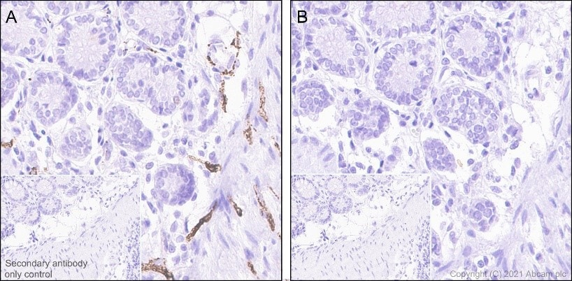 Immunohistochemistry (Formalin/PFA-fixed paraffin-embedded sections) - Anti-Tau (phospho S396) antibody [EPR2731] (ab109390)