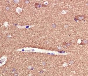 Immunohistochemistry (Formalin/PFA-fixed paraffin-embedded sections) - Anti-Tau antibody [EPR2396(2)] (ab109392)