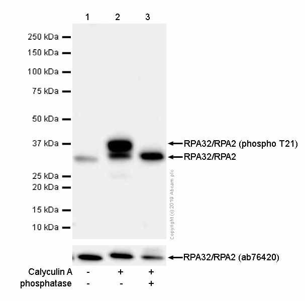 Western blot - Anti-RPA32/RPA2 (phospho T21) antibody [EPR2846(2)] (ab109394)