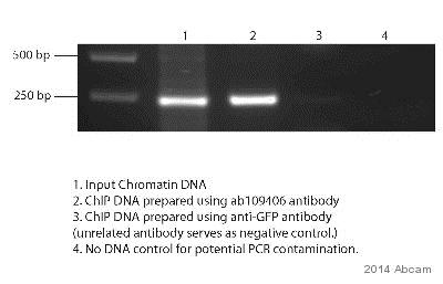 ChIP - Anti-NeuroD2 antibody [EPR5135] - ChIP Grade (ab109406)