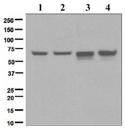 Western blot - Anti-Chk2 antibody [EPR4325] (ab109413)