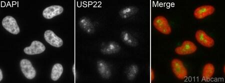 Immunocytochemistry/ Immunofluorescence - Anti-USP22 antibody [EPR4352(2)] (ab109435)