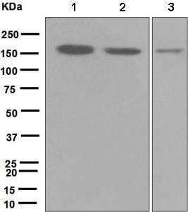 Western blot - Anti-HDAC9 antibody [EPR5223] (ab109446)