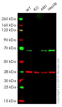 Western blot - Anti-PMP70 antibody [EPR5614] (ab109448)