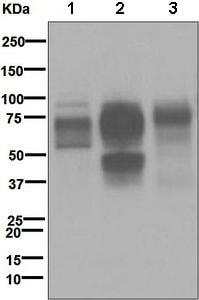 Western blot - Anti-CD64 antibody [EPR4623] (ab109449)