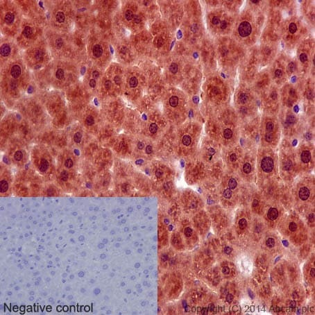 Immunohistochemistry (Formalin/PFA-fixed paraffin-embedded sections) - Anti-PRMT5 antibody [EPR5772] (ab109451)